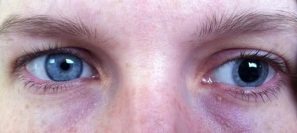 test des pupilles outils pour diagnostiquerun probl me visuelet outils pour corriger la vue. Black Bedroom Furniture Sets. Home Design Ideas
